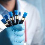 Hemofilia, o afectiune mostenita care nu seamana cu nicio alta boala comuna